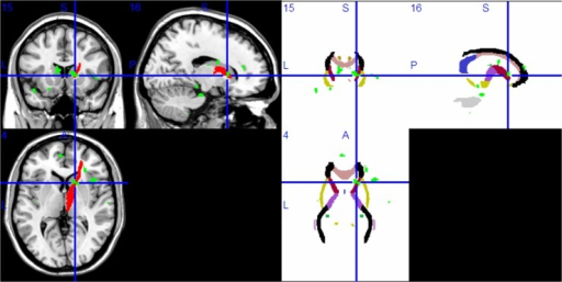 Compared with the HC group, the MDD group had lower FA values in the right anterior thalamic radiation in voxel-based diffusion tensor analysis (A: green; B: green in superimposed on WM tracts template).Abbreviation: HC, healthy control; MDD, major depressive disorder; FA, fractional anisotropy; WM, white matter.