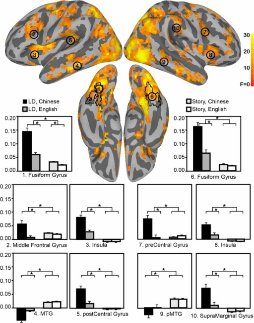 Brain regions identified as interaction of Task by Language.The black outlier indicates anatomical mask of bilateral fusiform gyrus. The bar graphes plot each ROI's activity pattern.