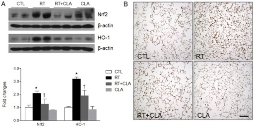 Effects of clarithromycin on Nrf2 and HO-1 expression levels and on HO-1 immunoreactivity in irradiated lungs of mice.(A) Nrf2 and HO-1 expression levels in lungs of control (CTL), radiation only (RT), radiation + clarithromycin (RT+CLA), and clarithromycin only (CLA) animal groups. Densitometry values were normalized to β-actin and data are presented as mean ± SEM (n = 2–6 mice per group). *p<0.05 vs CTL mice; †p<0.05 vs RT mice. (B) Immunostained HO-1 in lung tissue by group. Scale bar = 100 μm.