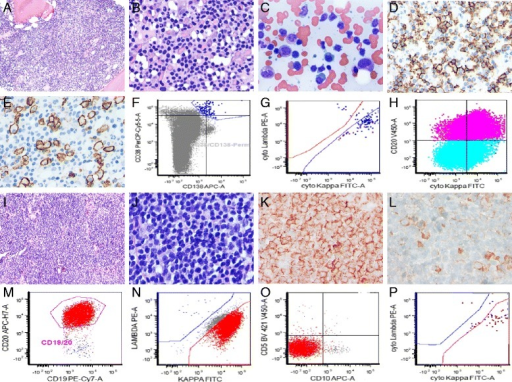The tissue or bone marrow involvement pattern and immunophenotypic profiling of the EMWM and BMWM patients. a, b A representative diffuse interstitial pattern of bone marrow biopsy in a patient with BMWM, ×40 and × 80 magnification. c Bone marrow aspirate smear showed many abnormal small lymphoid cells admixed with variable plasmacytoid cells and plasma cells, ×80 magnification. d CD20 stain on the abnormal small lymphoid cells, ×80 magnification. e CD138 stain on the plasmacytoid and plasma cells, ×80 magnification. f, g Immunophenotypic profiling of CD38 and CD138 positive plasmacytoid and plasma cells with strong monotypic cytoplasmic kappa light chain expression. h The abnormal small lymphoid cells were CD20 positive and showed monotypic kappa light chain expression. i, j A representative diffuse infiltrative pattern of a lymph node biopsy in a patient with EMWM, MYD88 mutation positive, ×40 and × 80 magnification. k CD20 stain on abnormal small lymphoid cells, ×80 magnification. l CD138 stain on few admixed plasmacytoid and plasma cells, ×80 magnification. m, o Immunophenotypic profiling of CD19 and CD20 positive small B-cells with kappa light chain restriction and were negative for CD5 and CD10. p Identical monotypic kappa light chain expression in the lymphoid cells was also seen in the plasmacytoid and plasma cells