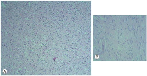 Microscopic examination of the tumour with H&E stain showing proliferation of fibroblasts, Schwann cells and neurites in a disorderly fashion within a myxoid background, ×40 magnification (A) and ×400 magnification (B) showing predominantly Schwann cells with elongated spindle-shaped nuclei on a myxoid background.