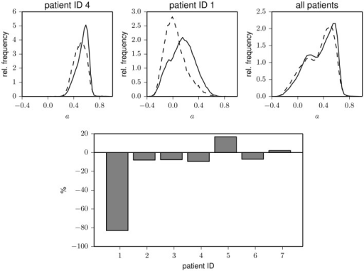 Top: Exemplary frequency distributions of the assortativity coefficient derived from data recorded during day (solid) and night times (dashed) for two patients (left and middle) and for the pooled data from all patients (right). Bottom: Relative changes of assortativity (ānight − āday)/āday during day and night times for each patient. āday and ānight denote median values of the respective distributions.