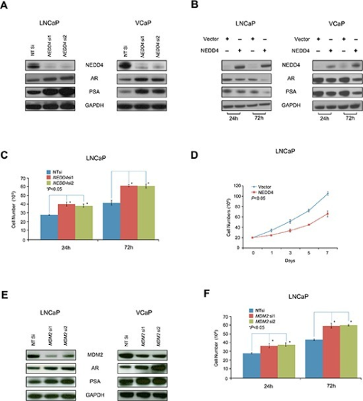 NEDD4 down-regulates of AR protein level and AR signaling, as well as inhibits the growth of LNCaP and VCaP cells(A) Inhibition of NEDD4 by siRNA (NEDD4 si1 and si2) enhances AR and PSA protein levels in LNCaP and VCaP cells. (B) Ectopic expression of NEDD4 decreases AR and PSA in LNCaP and VCaP cells. (C) Cell counting assay reveals that NEDD4 siRNA (NEDD4 si1 and si2) increases the growth of LNCaP cells (p < 0.05). (D) Conversely, ectopic expression of NEDD4 inhibits the growth of LNCaP cells (p < 0.05) as shown by cell counting assay. (E) As expected, MDM2 siRNA (MDM2 si1 and si2) also increases AR and PSA protein levels in LNCaP and VCaP cells.