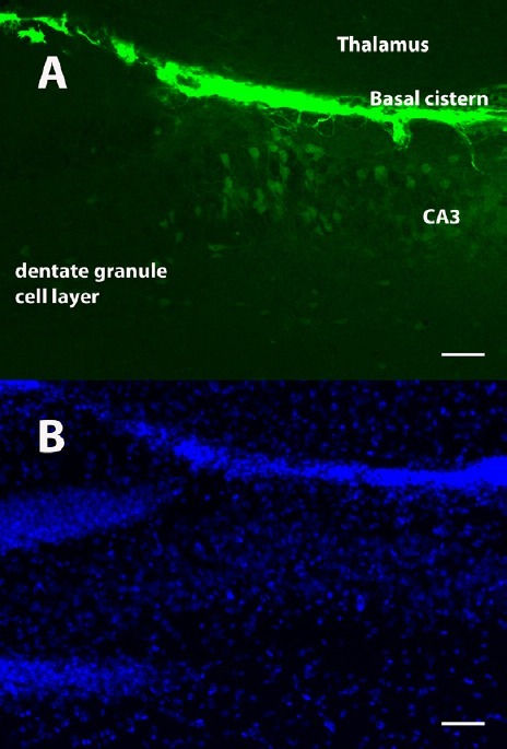 A subpopulation of transplanted cells detaches from the laminin scaffold.(A) The majority of transplanted cells survive along the laminin scaffold of the basal cistern. A subpopulation of cells with weaker green fluorescent protein (GFP) expression and no apparent capillary association appears to detach from the laminin scaffold of the basal cistern and migrate vertically into the CA3 area of the hippocampus 2 weeks after transplantation. (B) 4′,6-diamidino-2-phenylindole (DAPI). Scale bars: 50 μm. GFP: 1:2,000; polyclonal chicken; Abcam (Cambridge, MA, USA). DAPI: 1:500; Hoechst.