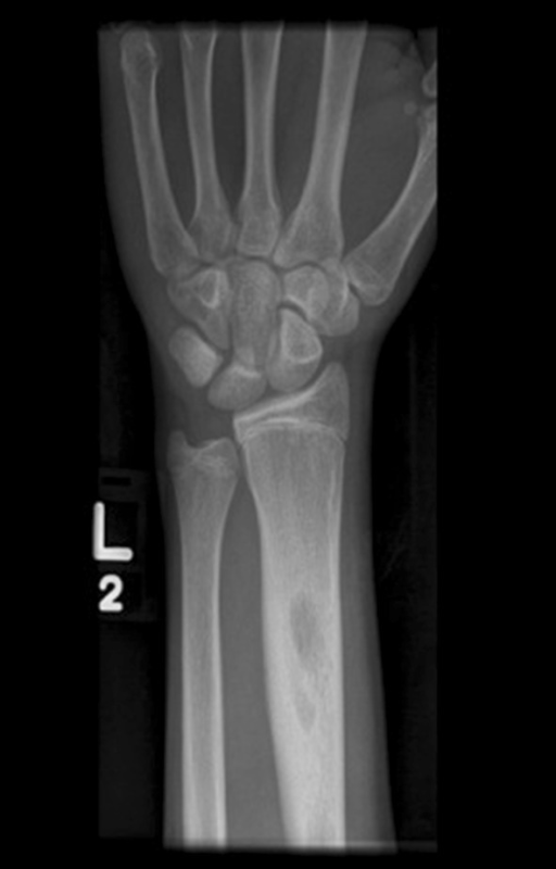AP radiograph of the left distal radius showing an intramedullary lytic lesion