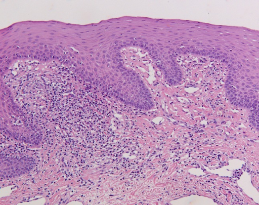 Low-power view microphotograph of labial biopsy showing non-characteristic signs of chronic inflammation. No granulomas were found. Original magnification 100×