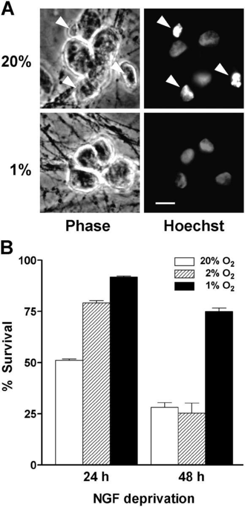Low O2 delays cell death caused by NGF deprivation. Sympathetic neurons were either deprived of NGF or refed with fresh NGF-containing media and immediately transferred to 20%, 2%, or 1% O2 incubators. At the end of the treatment, the cells were immediately placed in fixative and stained with Hoechst 33,342. (A) Phase-contrast and epifluorescence images show a single field of view for each condition. Cultures were exposed to either 20% or 1% O2 and deprived of NGF for 24 h. Note the presence of several apoptotic nuclei in cultures exposed to 20% O2 (arrowheads) but not in those at 1% O2. Bar, 15 μm. (B) Cells were scored for viability as described in Materials and methods. Results represent the percentage of cells having uniformly stained chromatin, phase-bright cell bodies, and clearly discernible nuclear membranes (mean ± SEM, n = 3).