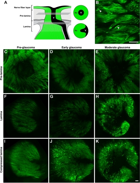 Early focal axon damage occurs in the glial lamina. To allow sensitive detection of axon damage along the entire axon from the soma to the lamina we analyzed D2.Thy1-CFP eyes (Materials and methods). For consistency with previous images, CFP-positive axons are pseudo-colored green. (A) Schematic demonstrating the location in the optic nerve head of the presented prelamina and lamina images (single focal plane) that are from the same eye for each damage level. In the prelamina region, vessels are apparent as a dark region in the center of the nerve. In the lamina, the vessels extend from the center to the edge of the nerve. (B) In an 11-mo-old eye with no or early glaucoma (Fig. 3), axon damage was detected as highly focal swelling of individual axons in the lamina. As previously reported for axonal contents, CFP accumulated in the swellings making them brightly fluorescent (arrowheads). The swellings were not present in other regions of the intraocular axon. (C–K) Representative examples of the prelamina and lamina regions in eyes with different degrees of glaucoma are shown. (C, F, and I) No glaucomatous damage was detected at any level in preglaucomatous young eyes (n = 4). (D, G, and J) Obvious axonal swellings were evident specifically in the lamina of eyes that were at early stages of glaucoma. These eyes were initially classified as having no or early glaucoma based on analysis of optic nerve from behind the eye (Fig. 3), but 5/8 were found to have early damage in the lamina. (E, H, and K) At moderate stages of glaucoma, the axonal damage had spread to portions of the axon in both the prelamina region and nerve fiber layer, and some axons had a highly abnormal morphology. The compressed lamina images represent a compressed Z stack of the entire lamina region that could be imaged in the mounted specimens (it was not possible to image the most posterior lamina). All images were collected using identical conditions. Bars, 20 μm.