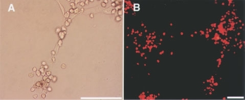 (A) HUVECs and BM-derived EPCs (mCD34+ and mFlt-1+) formed capillary networks. (B) BM-derived EPCs, which incorporated DiI-labelled acLDL, were integrated with HUVECs. Phase contrast photomicrographs showed capillary networks. Each scale bar is 10 μm.