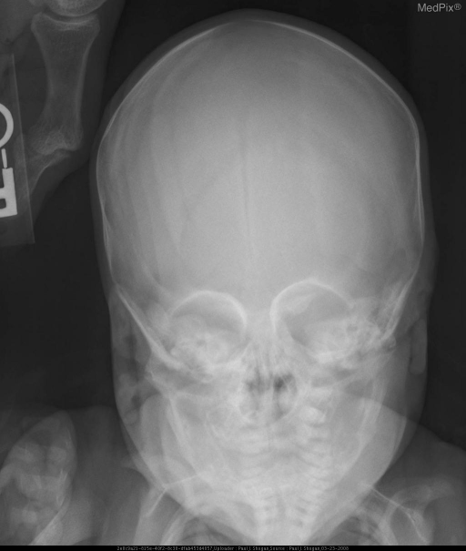 Abnormal skull morphology, with nonvisualization of the metopic suture.  There is abnormal sclerosis and narrowing of the anterior most aspect of the sagittal suture. There is thickening and prominence of the inferior frontal bones.  Hypotelorism with abnormal superomedial peaking of the orbits is noted.