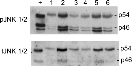 Representative immunoblots of human adipose tissue (n = 6) probed for total JNK (tJNK) and phosphorylated JNK (pJNK, Thr183/Tyr185).