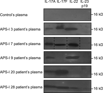 Specific auto-Abs against IL-17A, IL-17F, and/or IL-22 in the plasma from patients with APS-I. Western blot against rIL-17A, rIL-17F, rIL-22, and rIL-23 were performed using plasma from a healthy individual or from five patients with APS-I, diluted 1:500. Representative data for three experiments are shown. Dashed lines indicate that intervening lanes have been spliced out.