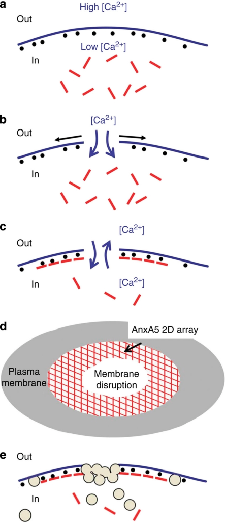 Model of cell membrane repair.(a) Intact cell membrane. The extracellular (Out) and intracellular (In) milieus differ by their high versus low Ca2+ concentrations, and the absence versus presence of AnxA5 (red rods) and PS (black spheres), respectively. (b) Local rupture of a cell membrane. Forces resulting from membrane tension tend to expand the tear laterally (black arrows). (c) The formation of an AnxA5 2D array at the torn membrane stops wound expansion. On membrane rupture, a microenvironment is formed in which the intracellular and extracellular milieus mix, providing optimal conditions for the formation of tight complexes between Ca2+, PS and AnxA5 (ref. 44). AnxA5 molecules bind to PS molecules exposed at ruptured membrane edges, form trimers and 2D arrays. These AnxA5 2D self-assemblies stabilize the membrane and stop expansion of the tear. (d) Top view of a membrane disruption with an AnxA5 2D array surrounding the tear. (e) Membrane resealing. Cytoplasmic vesicles are recruited at the ruptured membrane area and fuse by exocytosis with the plasma membrane, either directly as single vesicles or as a patch formed by homotypic fusion of intracellular vesicles19. The resulting increase in membrane surface and decrease in membrane tension lead to membrane resealing.