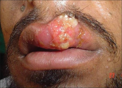 Ulcerated nodule on the upper lip