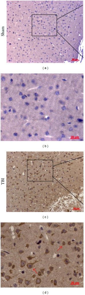 Representative photomicrographs showing cathepsin S (CatS) immunohistochemistry of tissue from the sham and traumatic brain injury (TBI) groups. In the sham group, almost none of the cells presented a positive morphology, whereas, in the TBI group, many cells were positive for CatS. CatS was present mainly in the cytoplasm. The CatS-positive cells in the TBI group (indicated by arrows) showed two populations of cells with different morphologies.