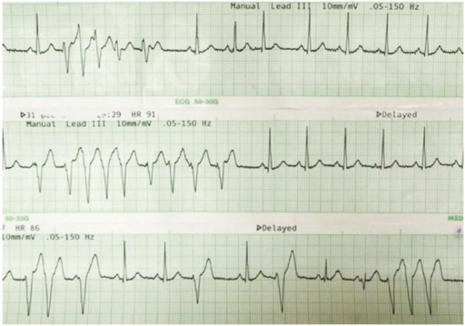 Arrhythmia (supraventricular tachycardia) is developed during catheter insertion.