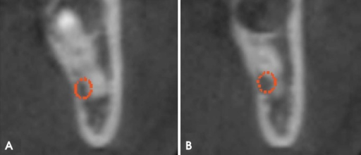 Initial cross-sectional cone-beam computed tomographic (CBCT) images of the site show the contact between the mandibular canal and the curvatures of the mesial (A) and distal (B) roots, depicted in different CBCT cuts.