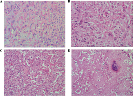 Histological examination characteristics of pulmonary epithelioid hemangioendothelioma (hematoxylin and eosin staining) (A, case 1; B, case 2; C, case 3; D, case 4). (A) Neoplasms are composed of short cords and nested tumor cells, and interstitial mucus degeneration (magnification, ×200). (B) Typically, the lumen or cavity in the tumor cytoplasm contain single or multiple erythrocytes (magnification, ×200). (C) Tumor cells are rich in certain areas, with marked atypia. The tumor cells are arranged in solid nests and duct-like structures, and form papillary structures in the blood vessels (magnification, ×200). (D) Tumor cells show multiple small nodules and local cerebral calcification at the necrotic center (magnification, ×100).