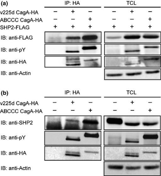 SHP2-binding activity of v225d CagA. (a) FLAG-tagged SHP2 was co-expressed with hemagglutinin (HA)-tagged v225d CagA or ABCCC CagA. Cell lysates were immunoprecipitated (IP) with an anti-HA antibody and immunoblotted with the indicated antibodies. (b) AGS cells were transiently transfected with a HA-tagged v225d CagA or ABCCC CagA expression vector. Cell lysates were immunoprecipitated with an anti-HA antibody and immunoblotted with the indicated antibodies. TCL, total cell lysates.