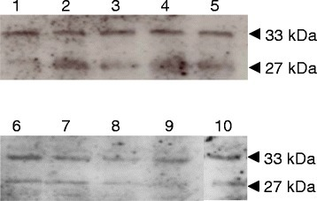 Immunoblot showing tyrosine phosphorylation of wild-type Wzd, ΔWzd and Wze proteins expressed inL. lactissubsp.cremorisMG1363. Detection of tyrosine phosphorylation of Wze (27 kDa) along with wild type Wzd (33 kDa) or nine separate tyrosine mutated Wzd versions (33 kDa) expressed in L. lactis subsp. cremoris MG1363 with plasmids pDY33FEB (lane 1), pDY44FEB (lane 2), pDY77FEB (lane 3), pDY110FEB (lane 4), pDY114FEB (lane 5), pDY124FEB (lane 6), pDY134FEB (lane 7), pDY266FEB (lane 8), pDY141FEB (lane 9), pDWTEB (lane 10). Cell lysates of L. lactis subsp. cremoris MG1363 transformants were separated by 12% SDS-PAGE and tyrosine phosphorylated proteins were probed with mouse monoclonal anti-phosphotyrosine antibody.