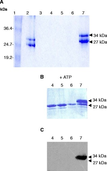 In vitrointeraction assay between resin-bound His6-WzdC41(34 kDa) and native Wze (27 kDa) proteins. Coomassie-stained gel A and B: (A) Lane 1 contains the BenchMark Prestained Protein Ladder (Invitrogen). Lane 2: The two proteins were incubated together in a 1:1 ratio with the Ni2+ charged resin for 4 h at 16°C in 2.5 ml buffer B1 containing 10 mM Tris–HCl pH 7.5, 100 mM NaH2PO4, 50 mM imidazole, 1% Triton, 5 mM MgCl2. Lanes 3 to 6: 5 ml wash fractions with buffer B1 in panels A and B (in panel B, 200 μM ATP was added to the wash in lanes 4 to 6). Lane 7: protein elution using 1 ml buffer containing 10 mM Tris–HCl pH 7.5, 100 mM NaH2PO4, 1 M imidazole, 1% Triton, 5 mM MgCl2, 2% sarcosyl. (C) Western blot of gel in panel B, detection was carried out using anti-phosphotyrosine antibody.