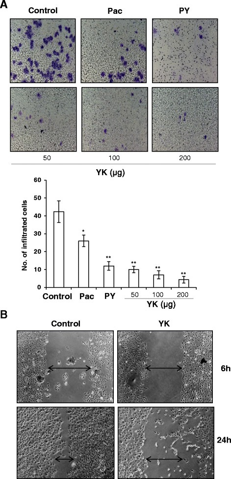 Inhibition of ovarian cancer cell migration and invasion in the presence of Yukyung Karne. a SKOV6 cells were grown in the presence of Paclitaxel (Pac, 10 nM), or different concentrations of Yukyung Karne (YK 50 μg, 100 μg, 200 μg) or PY [Pac (10 nM) + YK (100 μg)] for 24 h and cell invasion was determined by using transwell plates. No. of cells infiltrating through 8 μm pore size filter were stained with crystal violet (20 %), air dried and quantified by microscopy. b SKOV6 cells were grown in the presence of Yukyung Karne (100 μg) and subjected to scratch assay for 6 h or 24 h. Representative images of 3 independent experiments are shown here. All results are shown as mean ± S.D. from five random fields. Statistical significance:*, p <0.05, **, p <0.001