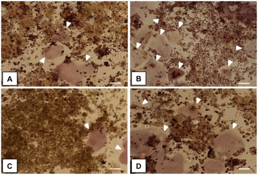 Multinucleated TRAP+ OCLs.The images show sRANKL-treated RAW264.7 cells cultured in direct contact with the samples: (A) HA-LF, (B) HA, (C) LF and (D) cells only, respectively. White arrows indicate large and multinucleated cells positive for tartrate-resistant acid phosphatase (mature OCLs). Scale bar 100 μm.