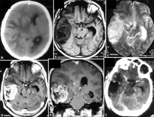 Hyperdense right temporal cortical mass with extensive perilesional edema was seen on CT(a). The mass was heterogenously hypointense on T1 and hyperintense on T2 with heterogenous but strong postcontrast enhancement (b,c,d,e). Dural tail sign was seen in the axial section (d). Postoperative scan showed complete excision (f)