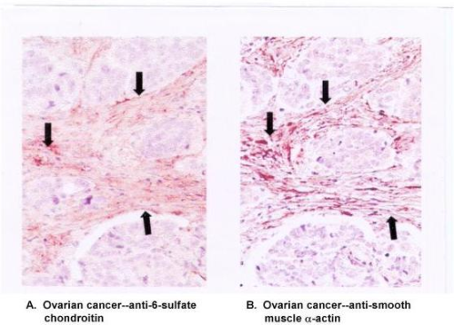 Histochemical staining of human ovarian tissue with anti-6-sulfate chondroitin or anti-smooth muscle α-actin antibody. Serial 5-μm sections of paraffin-embedded tumors were stainead with anti-6-sulfate chondroitin (A) or anti-smooth muscle α-actin (B). Arrows point to regions of staining overlap. (Reprinted with permission from Clinical Cancer Research).