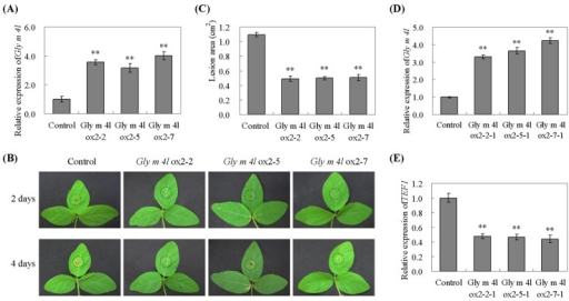 Response of Gly m 4l transgenic soybean plants to P. sojae.(A) Quantitative real-time PCR of the T2 transgenic soybean plants. (B) Disease symptoms on the leaves of the transgenic lines and non-transgenic lines treated with a P. sojae race 1 inoculum at 48 h and 96 h. (C) The lesion area of the transgenic lines and non-transgenic lines were detected after 96 h of incubation with P. sojae. (D) Quantitative real-time PCR of the T3 transgenic soybean plants. (E) Quantitative real-time PCR analysis of P. sojae relative biomass based on the transcript level of the P. sojae TEF1 gene. The experiment was performed on three biological replicates with their respective three technical replicates and statistically analysed using Student's t-test (*P<0.05, **P<0.01). Bars indicate standard error of the mean (SE).