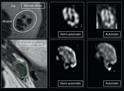 Quantitative analysis of FR. Regions of interest were drawn around the epineurial contour of peripheral nerves in axial T1-weighted images (green line). Quantitative analysis was performed on every slice, extremes excluded. On MRI images, the software, after threshold identification, differentiated the fascicles (hypointense on T1-weighted sequences) and the perifascicular tissue (hyperintense on T1-weighted sequences) that resembles the signal of fat. The FR was calculated based on the volume of the fascicles in relation to the total volume of the nerve. The pathological nerve is a tibial nerve. The results are reported in the text and tables. FR = fascicular ratio, MRI = magnetic resonance imaging.