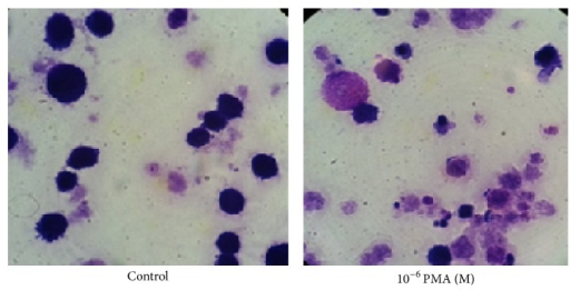 TF-1a cells stained with DIPP Quick Stains. TF-1a cells were treated with PMA for 48 hours, after which the cells were collected and slides were prepared following the method described in Section 2. The staining method followed manufacture's instruction (×1000).