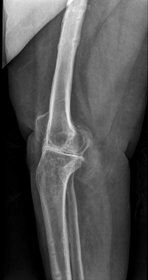 Lateral plain radiograph at seven months showing good consolidation at the arthrodesis site