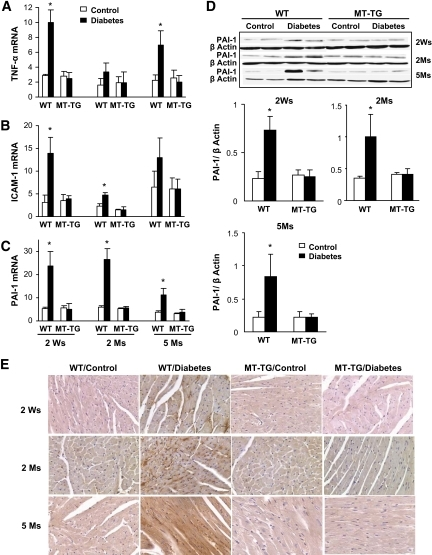Diabetes-induced cardiac inflammation. Real-time RT-PCR was used to examine the expression of TNF-α (A), ICAM-1 (B), and PAI-1 mRNA (C) in the hearts of diabetic mice at indicated postdiabetic times. TNF-α, ICAM-1, and PAI-1 expressions were normalized to GAPDH, by which the fold changes in expression were calculated using 2−ΔΔCt method. Expression of PAI-1 was further confirmed for its protein level by Western blotting (D) and localization by immunohistochemical staining (E). *P < 0.05 vs. corresponding controls. Ms, months; Ws, weeks; WT, wild type. (A high-quality digital representation of this figure is available in the online issue.)