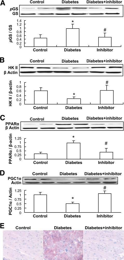 Inhibition of GSK-3β by its inhibitor attenuated diabetes-induced changes related to glucose and lipid metabolism. Once diabetes was diagnosed on day 3 after mice were injected with STZ, half of these diabetic mice were immediately administered GSK-3β–specific inhibitor SB216763 at 600 μg/kg every other day for 2 months, and then cardiac glycogen synthase (GS) phosphorylation (A), HK II expression (B), PPARα expression (C), and PGC-1α expression (D) were examined by Western blotting. Cardiac lipid accumulation was examined by Oil Red O staining (400×) (E). *P < 0.05 vs. corresponding controls; #P < 0.05 vs. corresponding diabetes. (A high-quality digital representation of this figure is available in the online issue.)