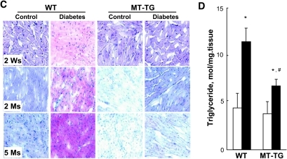 Diabetes-increased PPARα expression and lipid accumulation. Cardiac tissues were collected, as indicated in Fig. 1, for detecting PPARα (A) and PGC-1α (B) expressions by Western blotting and cardiac lipid accumulation by Oil Red O staining (400×) (C) and triglyceride measurement (D). Panel D presents the data only from diabetic mice 2 weeks (Ws) after diabetes. *P < 0.05 vs. control; #P < 0.05 vs. wild-type (WT) diabetic group. Ms, months. (A high-quality digital representation of this figure is available in the online issue.).