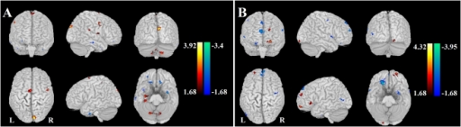 Altered effective connectivity from the other brain regions to the amygdala.Altered effective connectivity from the other brain regions to the left (A) and right amygdala (B) (, FDR corrected) when SAD compared to HC. The hot and cold colors indicate the brain regions that show significantly increased and decreased effective connectivity, respectively. The color scale represents T values.