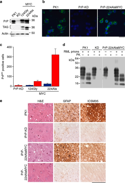 Generation of prion-susceptible cell lines expressing epitope-tagged PrPC and PrPSc.(a) Western blots developed with anti-PrP and anti-MYC antibodies showing levels of PrPC in PK1, PrP-KD, PrP-124GlyMYC and PrP-224AlaMYC cell extracts. Actin is used as a loading control. Quantitative densitometry of similar blots that showed PrP expression was reduced by 90–95% in our PrP-KD cells. (b) Merged confocal images of PK1, PrP-KD and PrP-224AlaMYC cells stained with anti-PrP antibodies (green) and counterstained with 6-diamidino-2-phenylindole (blue) are shown; scale bar, 20 μm. (c) Scrapie Cell Assay (SCA) data showing the relative prion susceptibility of cell lines expressing PrP-MYC constructs compared with PrP-KD cells. Cells exposed to RML prions (red bars) or control cells (blue bars) were processed for the SCA. PrP molecules with the MYC tag inserted near the C-terminus at Ala224 support prion propagation; 124GlyMYC cells, uninfected PrP-224AlaMYC cells and infected PrP-KD cells do not contain PrPSc. The mean±s.e.m. of six independent experiments are shown. (d) Tg20 mice inoculated intracerebrally with extracts of prion-infected PrP-224AlaMYC cells develop prion disease. Western blots developed with anti-PrP antibodies showing that tg20 mice inoculated with extracts of prion-infected PK1 and PrP-224AlaMYC cells generate PK-resistant PrP (PrPSc) with a triplet band pattern similar to that of RML prions. (e) Histological analysis of tg20 mice brains inoculated with extracts of RML prion-infected PK1 cells (iPK1) and PrP-224AlaMYC cells (iPrP-224AlaMYC) revealed classical prion neuropathology with PrPSc deposition (ICSM35 immunostaining), neuronal loss and spongiosis (hematoxylin and eosin, H&E staining) and gliosis (GFAP immunostaining). Brains from animals inoculated with extracts of RML prion-infected PrP-KD cells (iPrP-KD) or control uninfected PrP-224AlaMYC cells (PrP-224AlaMYC) did not contain PrPSc or show other diagnostic features. Scale bar is 80 μm on the H&E stained sections and 160 μm for all other panels.