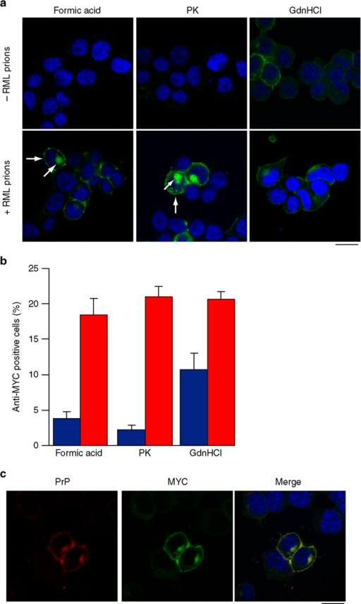 Characterization of de novo MYC-tagged PrPSc distribution in RML prion-infected cells.(a) Comparison of the methods used to visualize PrPSc in RML prion-infected cells. Uninfected PrP-224AlaMYC cells (top panels) or chronically RML prion-infected PrP-224AlaMYC cells (passage five following prion exposure—bottom panels) were fixed and treated with 98% formic acid, proteinase K (PK) or guanidinium hydrochloride (GdnHCl) before staining with anti-MYC antibodies (green) and counterstaining with 6-diamidino-2-phenylindole (DAPI, blue). Merged confocal images are shown; scale bar, 20 μm. A proportion of the RML prion-infected cells contain formic acid and PK-resistant PrP (PrPSc) with a characteristic plasma membrane/perinuclear compartment distribution (arrow). (b) Quantification of randomly chosen cell fields from uninfected PrP-224AlaMYC cells (blue bars) or chronically RML prion-infected PrP-224AlaMYC cells (red bars). Approximately 20% of the cells in cultures exposed to RML prions contain formic acid/PK-resistant PrP (PrPSc). The background staining observed in the uninfected PrP-224AlaMYC cells after formic acid and PK treatment is mostly attributable to clumped cells in which access to the PrPC is restricted. The mean±s.e.m. from four independent experiments are shown. (c) Chronically RML prion-infected PrP-224AlaMYC cells were fixed and treated with 98% formic acid before staining with anti-MYC antibodies (green) and anti-PrP antibodies (red); the cells were counterstained with DAPI (blue). Single channels and merged confocal images are shown as indicated; scale bar, 20 μm.