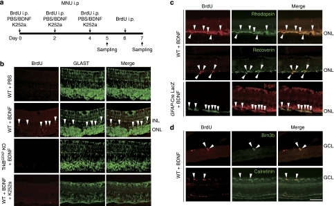 Effect of BDNF on the proliferation of Müller glial cells during retinal degeneration.(a) Animal protocols. MNU (60 mg kg−1) was injected intraperitoneally (i.p.) to WT, TrkBGFAP KO and GFAP-Cre LacZ mice. BrdU (50 mg kg−1) was injected (i.p.) at day 0, 2, 4 and 6 after MNU treatment. PBS, BDNF (1 μg μl−1) and K252a (1 mM) were intraocularly injected at day 0, 2 and 4, and the animals were killed at day 5 or 7. (b) Sections of the retina treated with PBS, BDNF and K252a in WT and TrkBGFAP KO mice (day 5). BDNF increased BrdU-labelling in GLAST-positive cells in the INL (arrowheads) and some cells in the ONL in WT, but not in TrkBGFAP KO mice. K252a (a blocker for Trk receptors) inhibited BDNF-induced BrdU expression. (c) BrdU-labelled cells in the ONL were double labelled (arrowheads) with rhodopsin or recoverin in WT mice, and with β-gal in GFAP-Cre LacZ mice (day 7). (d) BrdU-labelled cells in the GCL were double labelled (arrowheads) with Brn3b or calretinin (day 7). Scale bar, 50 μm. GCL, ganglion cell layer; INL, inner nuclear layer; ONL, outer nuclear layer.