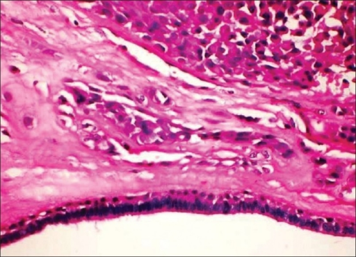 Tubuloalveolar structures lined by bi layered epithelium (H and E; 400×)