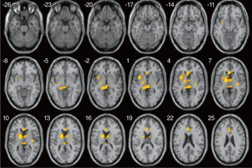 Two sample statistical parametric mapping (SPM) axial maps rendered on to a normalized T1-weighted MR image, shows areas of significant decrease in fractional anisotropy (FA) values in poor outcome subjects compared to good outcome subjects (thresholded at uncorrected P<0.0005 and the extent of 16 clusters).