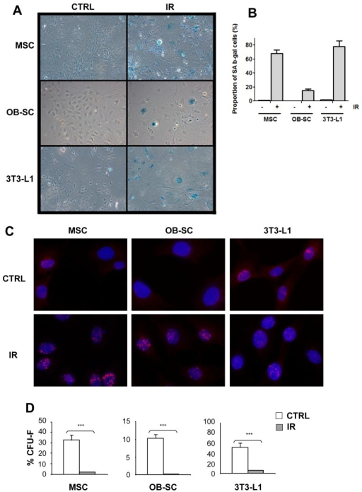 Senescence of multipotent and committed stromal lineages following exposure to IR.(A) Murine bone marrow-derived multipotent stromal cells (MSC), osteoblasts (OB–SC) and pre-adiopocytes (3T3-L1) were exposed (IR) or not (CTRL) to 10 Gy IR and 7 days later stained for the expression of the senescence-associated β-galactosidase (SAβ-gal). (B) Quantification of the proportion of SAβ-gal positive cells in each population. (C) Sustained activation of the DNA damage response in stromal populations was measured by staining for the presence of 53BP1 DNA damage foci (in red) one week post exposure to IR. Nuclei were counterstained with DAPI. (D) The proliferation capacity of MSC, OB–SC and 3T3-L1 cell population was determined using a CFU assay one week post-exposure or not to IR. Mean ± standard error of at least three individual experiments is shown. p values were obtained by performing a Student's t-test.