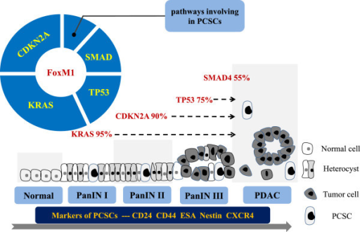 Model of the genetic progression of pancreatic carcinogenesis. The genetic alterations that occur during pancreatic carcinogenesis can be classified as early (activating mutation of KRAS), intermediate (inactivation of CDKN2A), and late (inactivation of TP53 and SMAD4 and activation of some pathways in PCSCs) events. Markers of PCSCs, including CD24, CD44, CXCR4, ESA, and Nestin, are detected in different sites during pancreatic carcinogenesis (in order of increasing percentage): normal ducts, low-grade PanIN lesions, high-grade PanIN lesions, and PDACs. FOXM1 may play a critical role in the early stages of PDAC development via cross-talk with major signaling pathways. Other gene mutations may occur during PanIN formation but are not illustrated in this model.