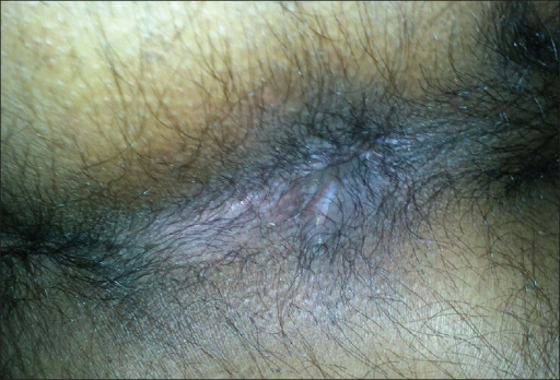 Anal canal showing stigmata of sclerotherapy