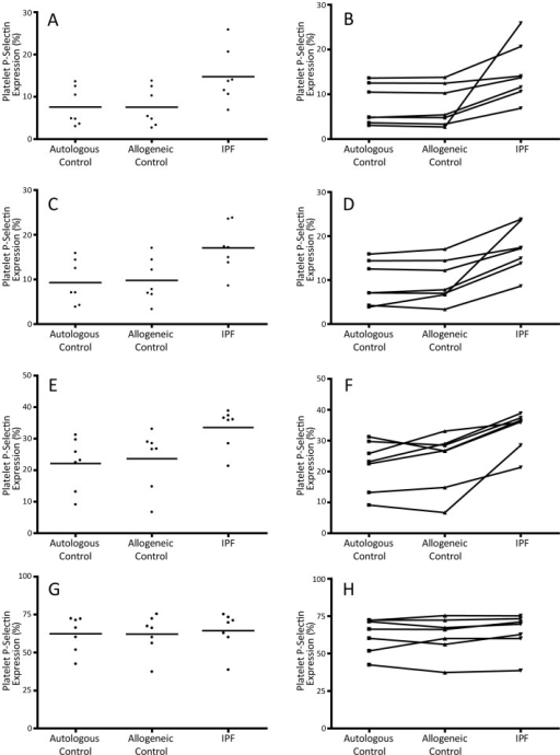 The influence of the plasma environment on platelet function in IPF patients.Scatter plots (A,C,E,G) demonstrating platelet P-selectin expression (bars indicate means) and line graphs (B,D,F,H) showing the change in P-selectin expression of control platelets following incubation in autologous plasma, allogeneic control plasma, and IPF patient plasma at basal levels (A,B) and following stimulation with ADP 0.1 µM (C,D), 1 µM (E,F) and 10 µM (G,H).