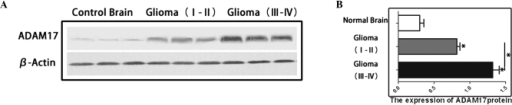ADAM17 protein expression significantly increases with ascending glioma grade. (A) Expression of ADAM17 protein level in different grades of glioma. (B) Graphical representation of the ADAM17 protein level expression profiles. Data are presented as the mean ± standard error, *P<0.05, III–IV vs. I–II, III–IV vs. normal, and I–II vs. normal. ADAM17, a disintegrin and metalloproteinase-17.