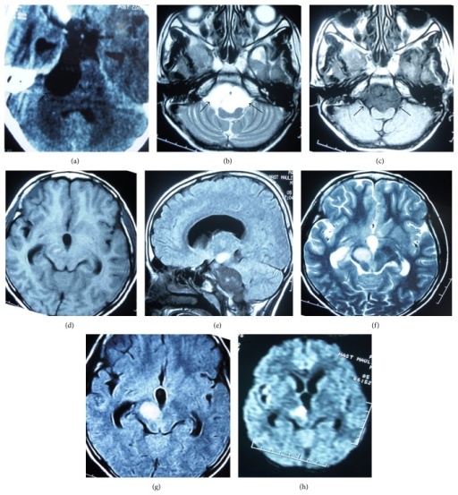 (a) Axial image of plain computed tomography (CT) showing hypodense lesion in right cerebellopontine angle and prepontine cistern with compression of the brainstem. Axial T2 (b) and T1 (c) weighted MR images showing the lesion to be hypointense on T1 and hyperintense on T2 sequence (black arrows outline the tumour). (d) and (e) are T1 weighted axial and sagittal images. (f), (g), and (h) are axial T2, FLAIR, and diffusion weighted images, respectively, revealing another lesion of hyperintensity and restricted diffusion in right half of midbrain.