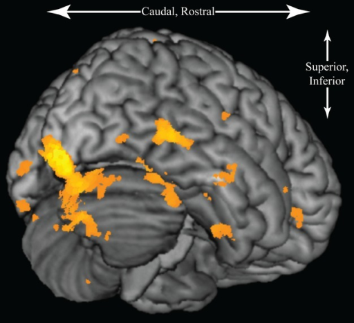 Three-dimensional rendering of the brain overlaid with regional differences in cellular activity determined by SPM8, extended threshold k = 250 voxels, P < 0.05. The highest activity differences are denoted in bright yellow, color threshold from 10 to 35 T.
