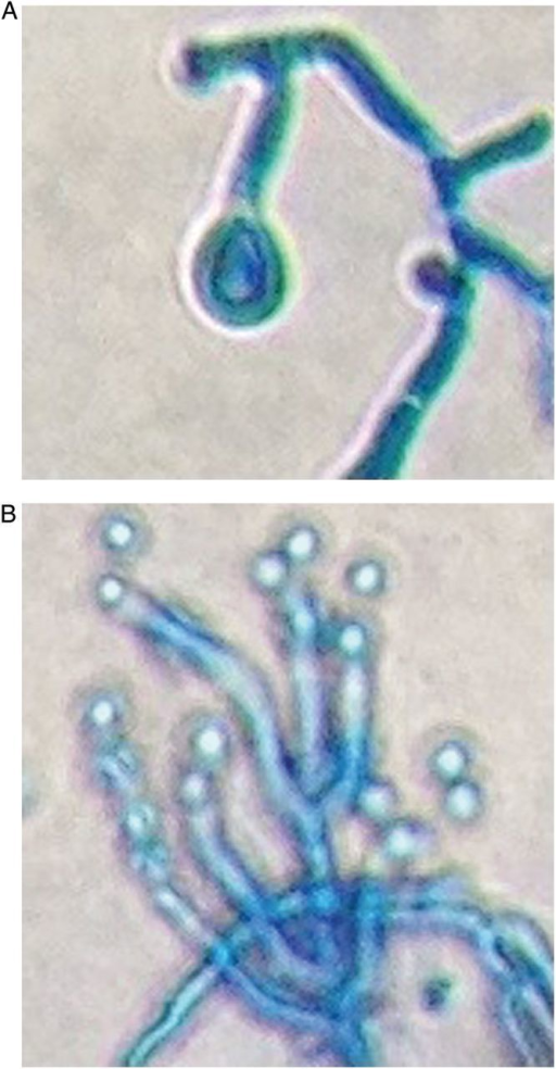 (A) Chlamydospore and (B) Conidiophore. Microscopy depicting filamentous fungi Paecilomyces puntonii (lacto phenol cotton blue stain).The presence of whorl-like arrangement of conidiogenous cells and conidiophores borne singly are characteristic features.